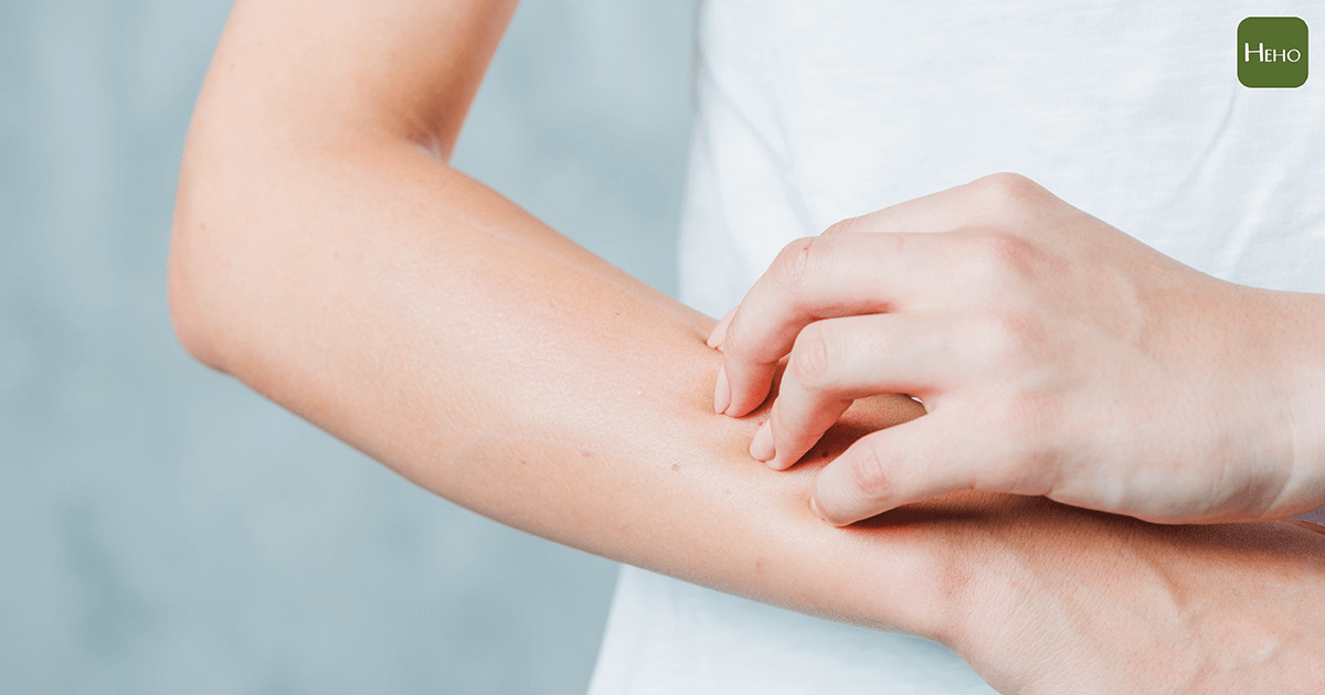 皮膚發癢千萬別輕忽,你可能出現這8大病症