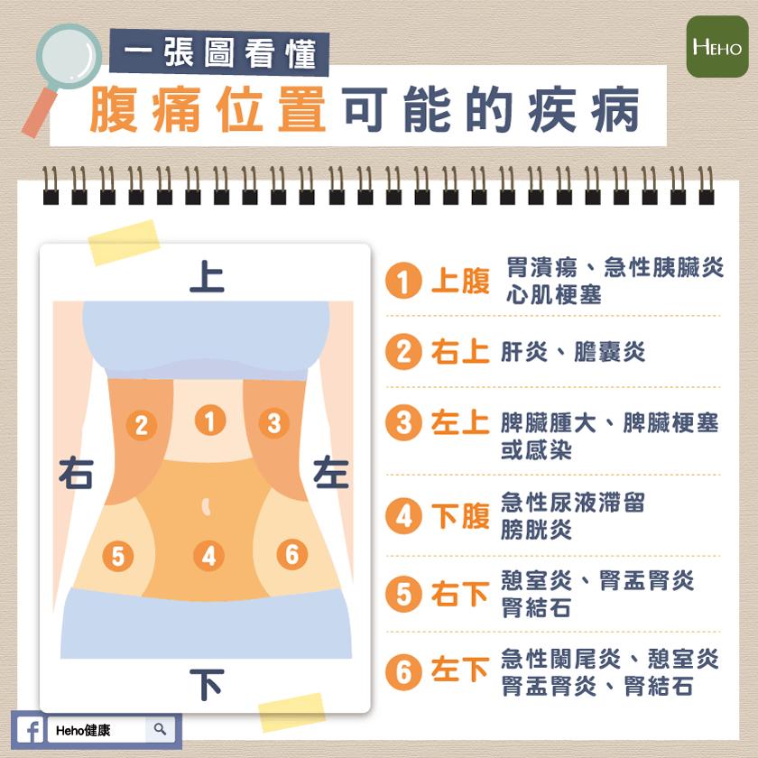 一張圖看懂,腹痛位置可能的疾病