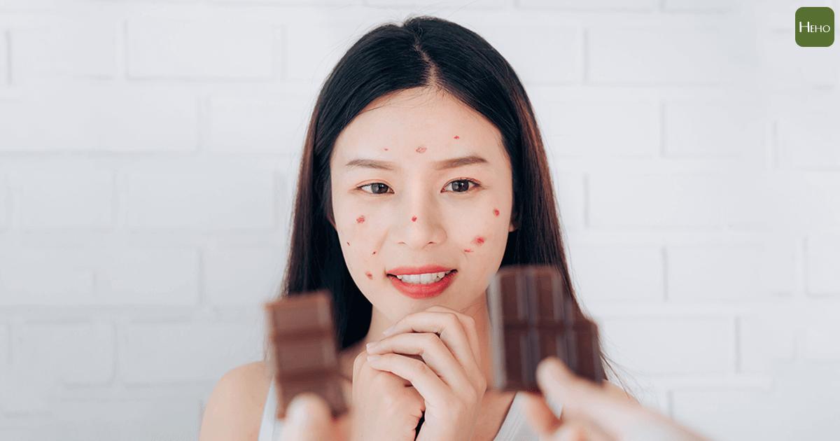 巧克力、牛奶是致痘幫兇?改善膚質應該這麼吃!