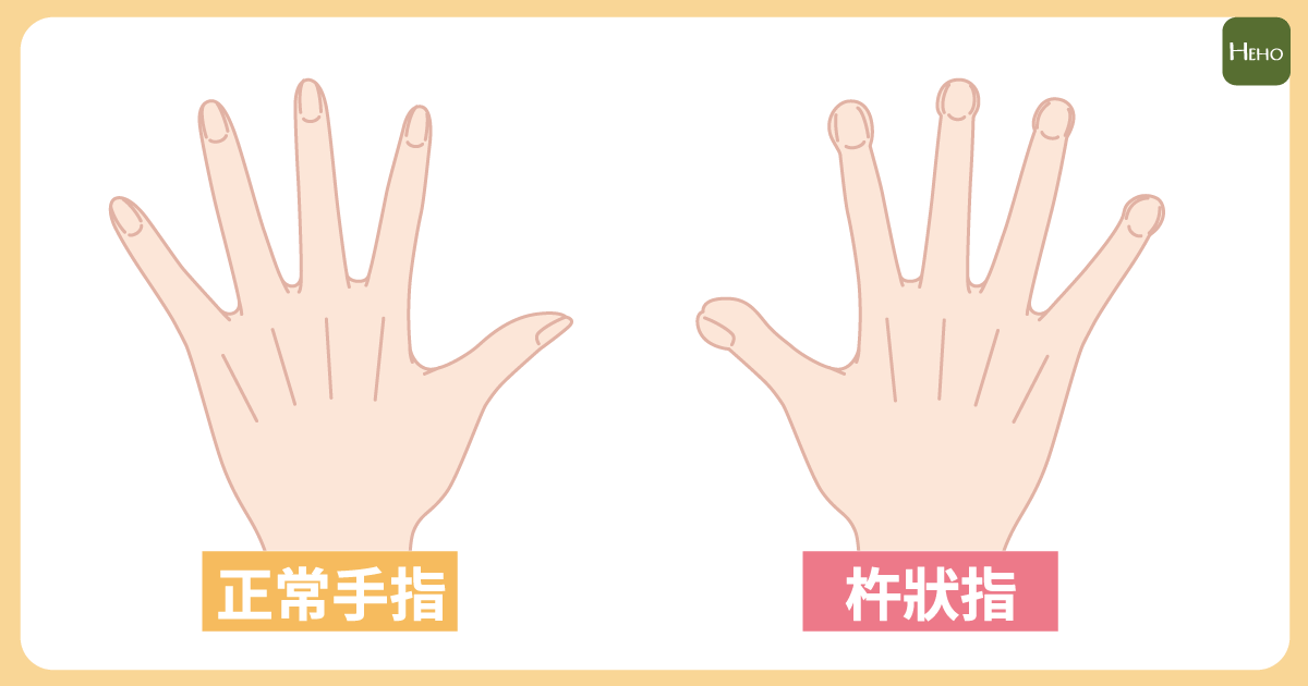 杵狀指 (1)