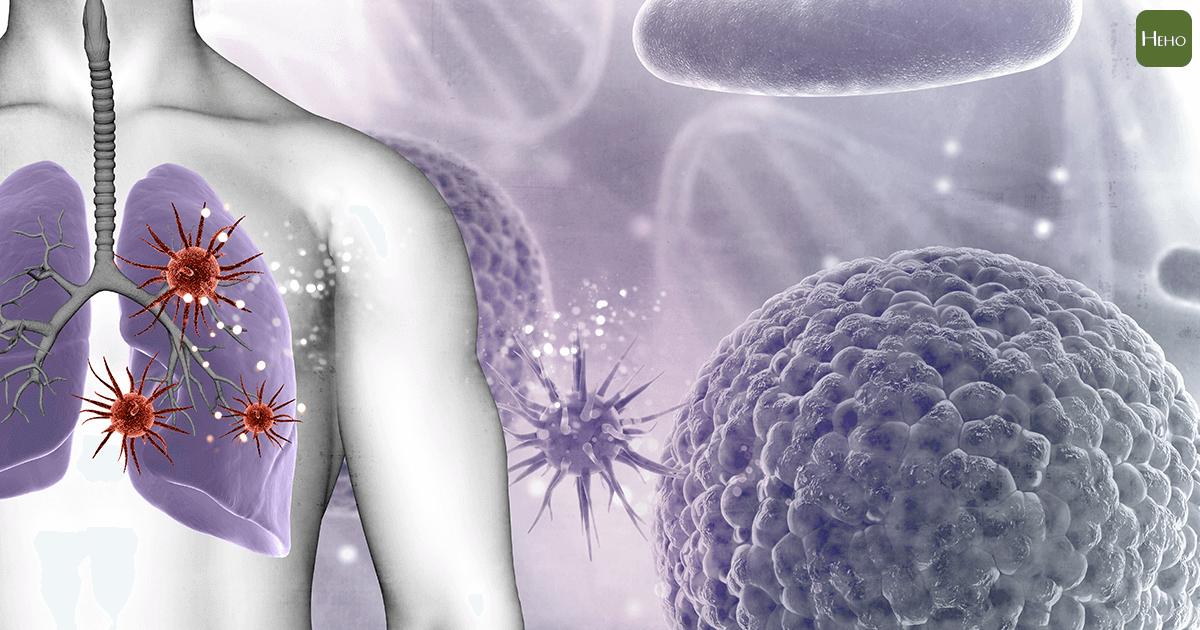 肺癌-轉移