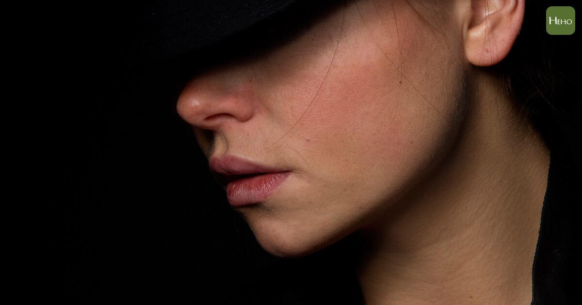鼻子周圍出現發癢脫屑的紅疹嗎?可能是得了脂漏性皮膚炎~