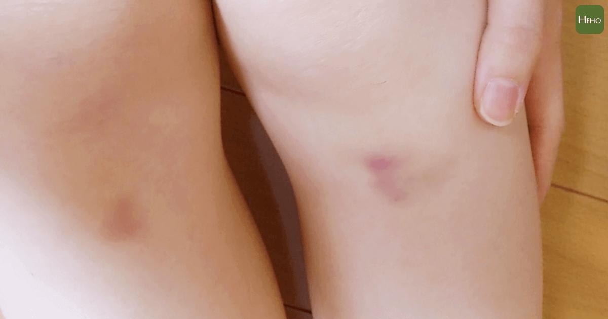 輕輕一碰就瘀青,不是因為你的皮膚嫩 而是這5個原因