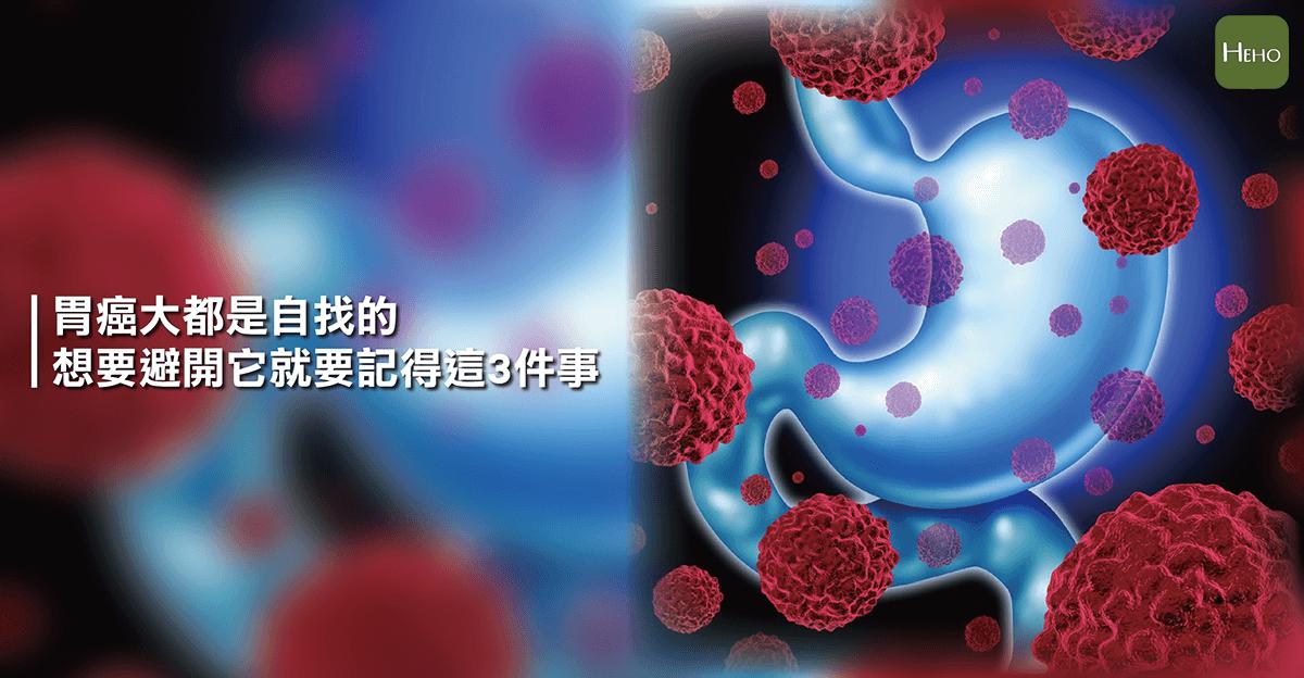 胃癌-01