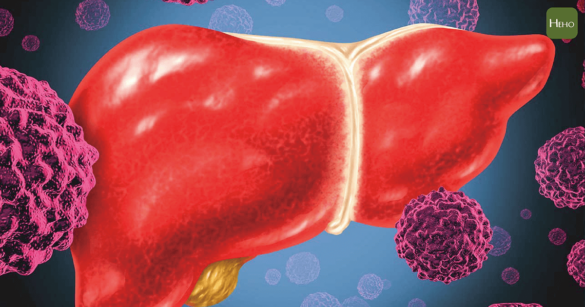 你知道嗎?低血糖是肝癌的早期徵兆!