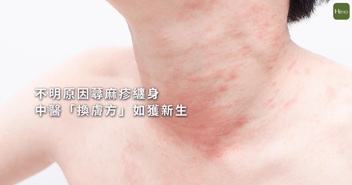 慢性 蕁 麻疹 原因