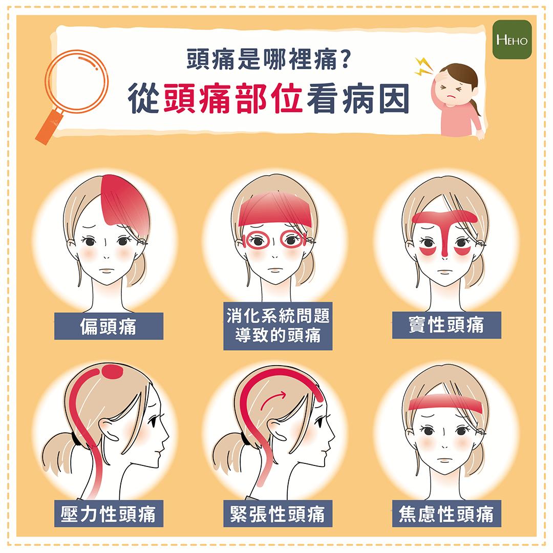 頭痛是哪裡痛?從頭痛部位看病因