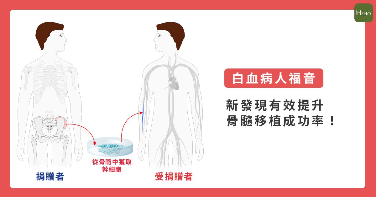 骨髓移植_白血症