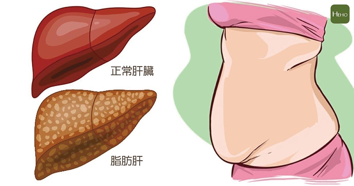脂肪肝-01