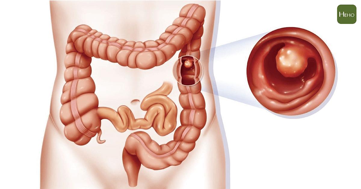 糞便潛血篩檢陽性 不做大腸鏡 病人還能怎麼追蹤病情?