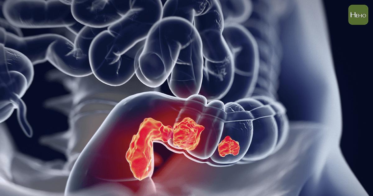 確診大腸癌後,我有哪些手術方式可以選擇?