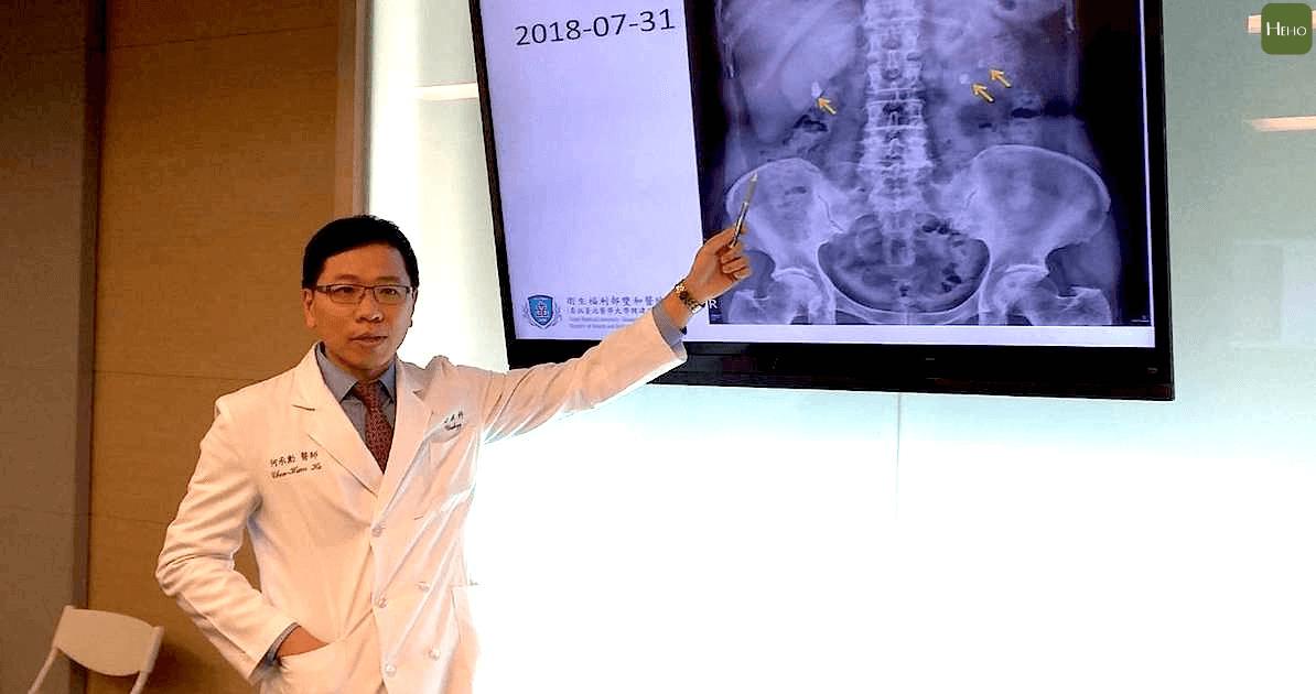 腎結石手術該怎麼選?「軟式輸尿管碎石」一次幫你清乾淨 | Heho健康