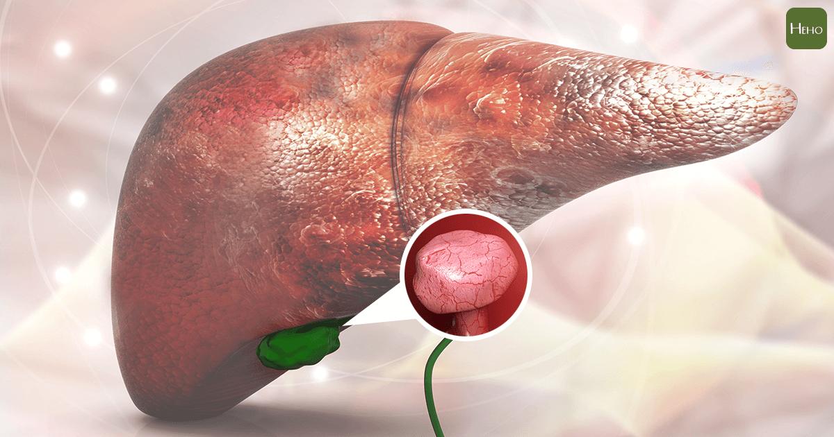 脂肪肝是肝臟健康殺手!美國營養學專家用3種食物幫助清掉多餘脂肪