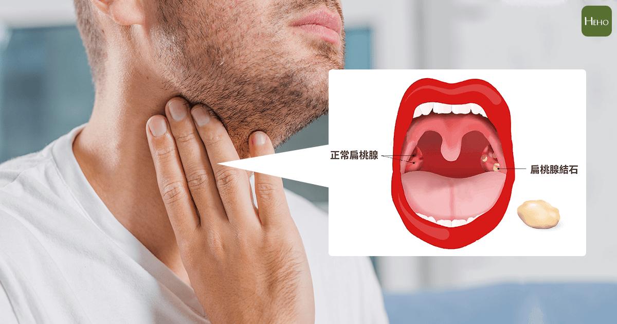 手術 扁桃 腺