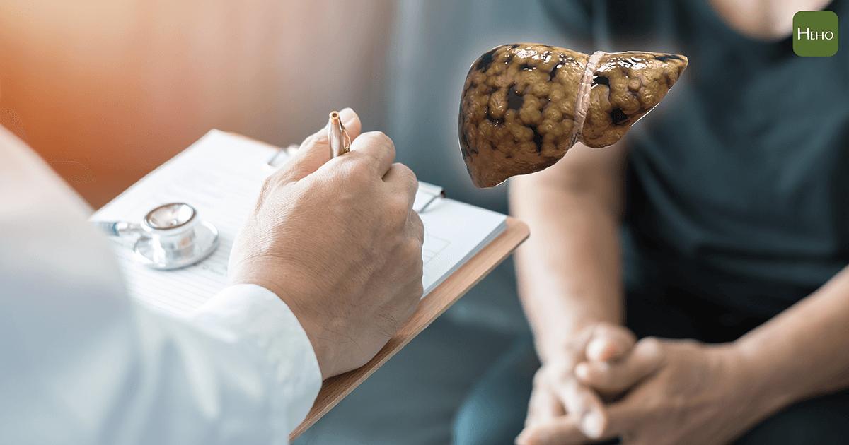 你的肝有問題嗎? 請看這份肝臟檢查須知 | Heho健康