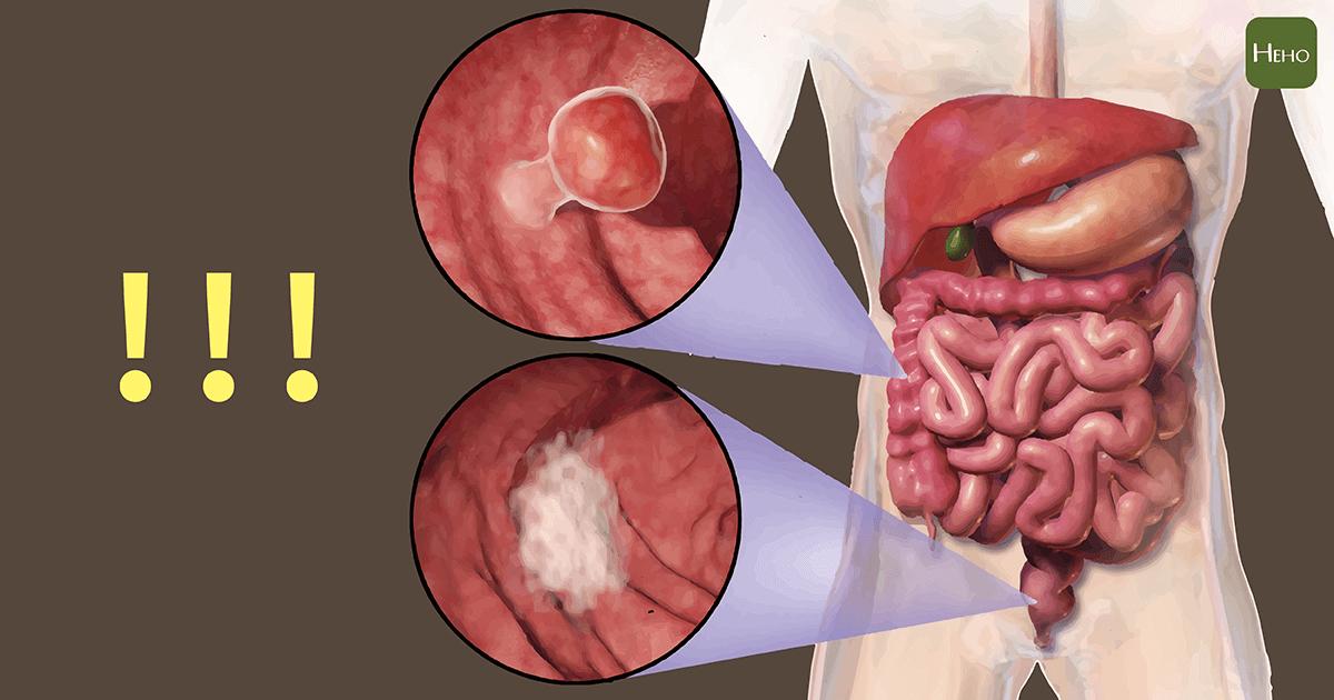 古人怎麼治癌?木乃伊揭秘:往腸子灌銅!