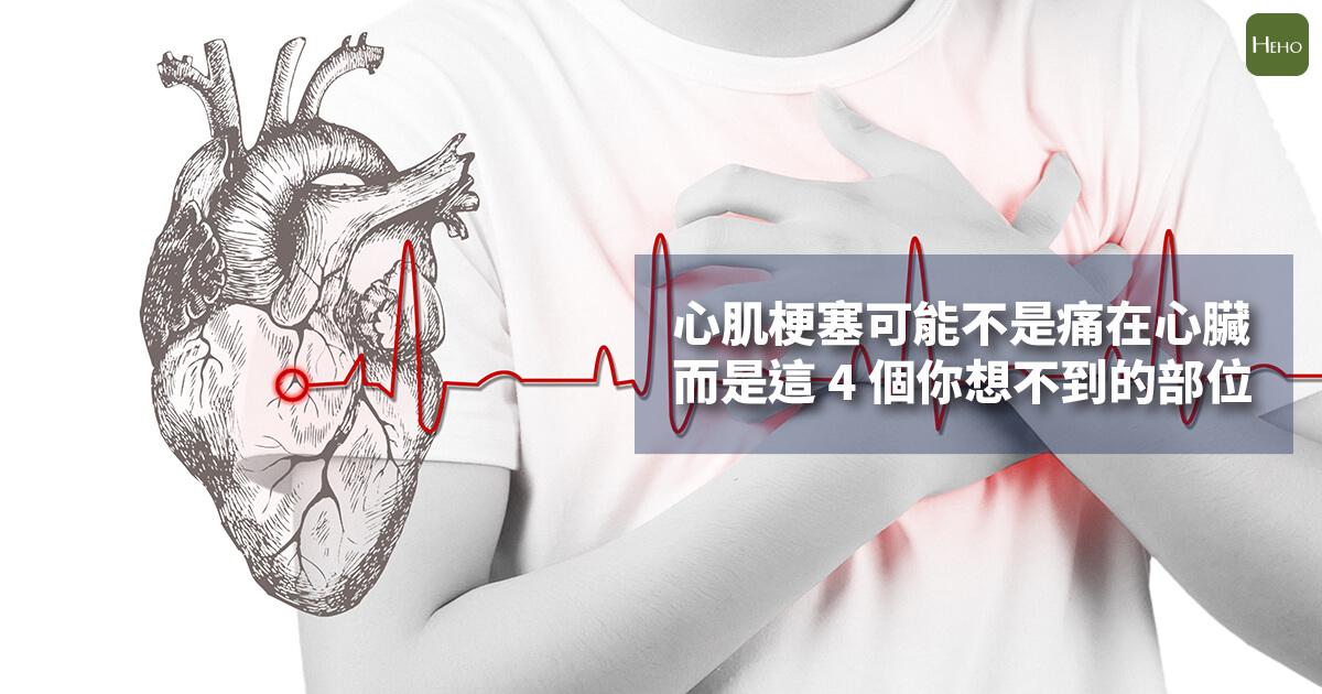 心肌梗塞可能不是痛在心臟 而是這4個你想不到的部位