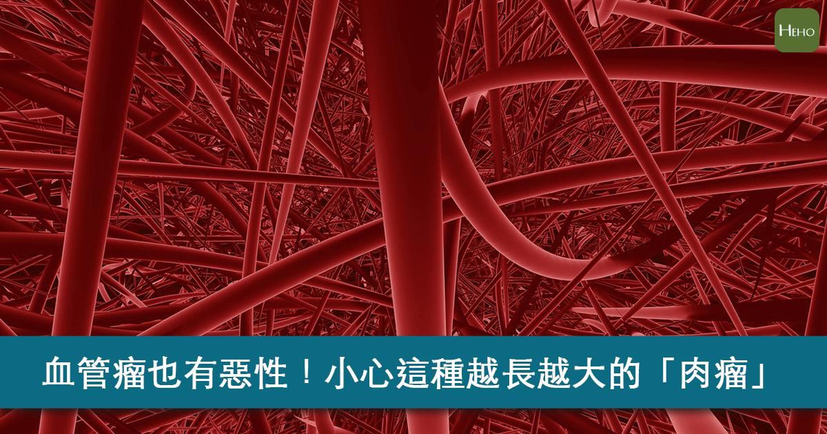 血管瘤竟然也有惡性的?小心這種會長大的「肉瘤」!