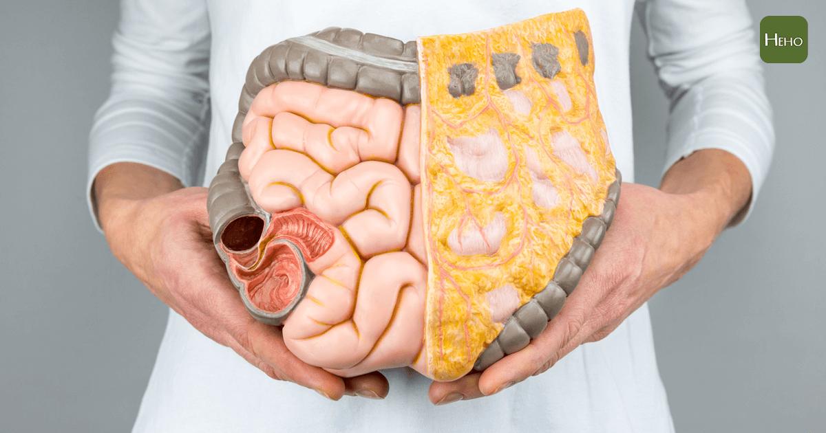 大腸癌除了手術切除,別忘記術後還有化療要做!