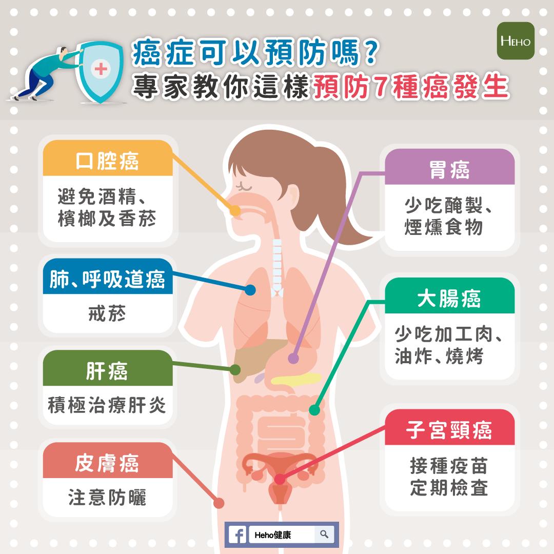 癌症可以預防嗎_專家教你這樣預防7種癌發生