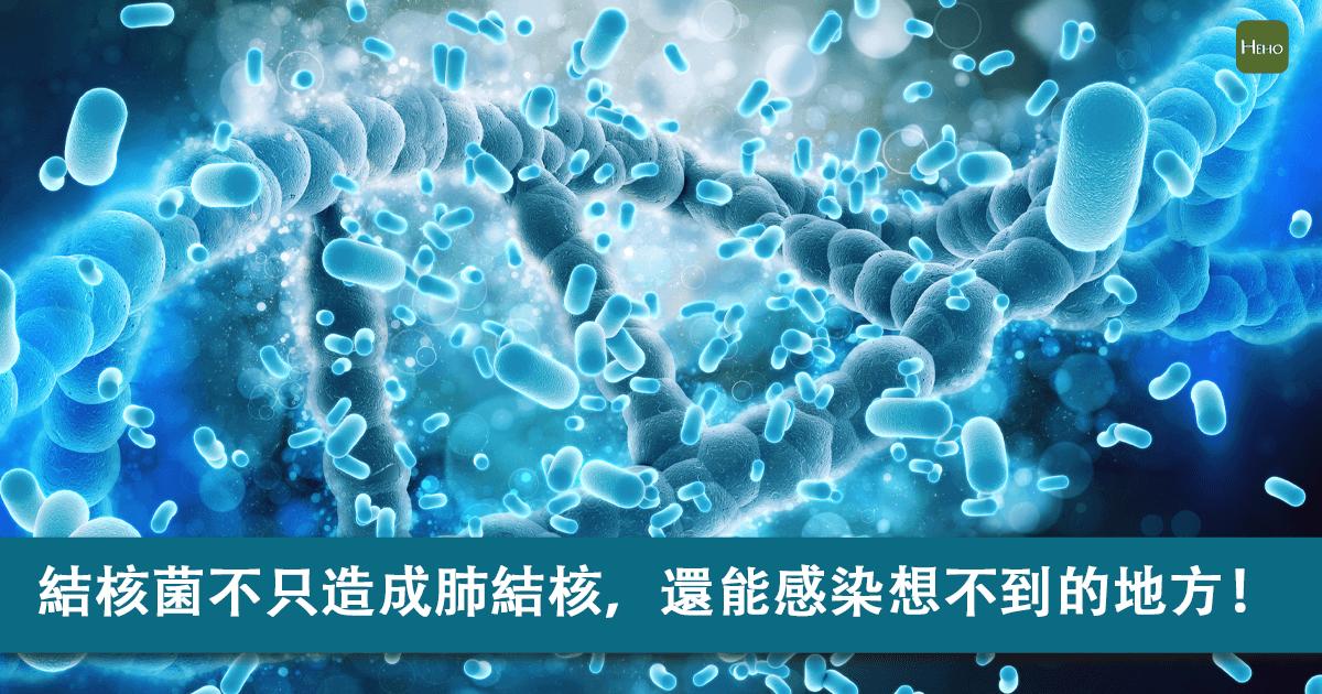 結核桿菌不只會造成肺結核,還可能感染這些意想不到的地方