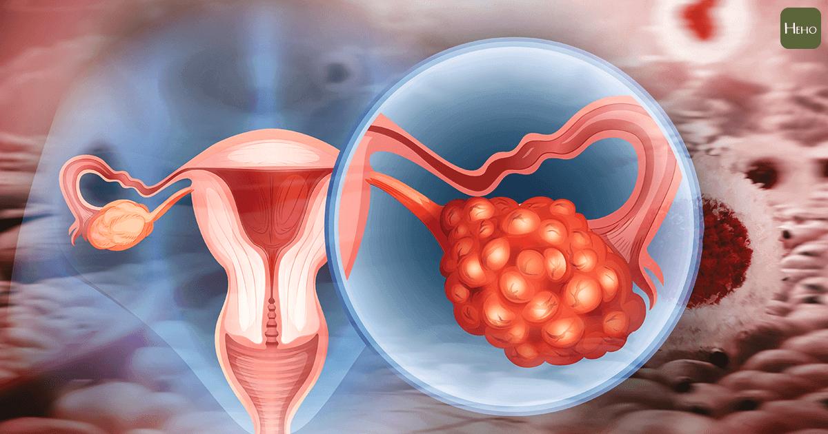 症狀再輕微都要積極處理 子宮內膜異位症癌變機率翻4倍!