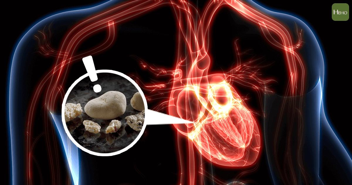 膽、腎、膀胱、尿道與牙齒都會結石,聽過心臟也會結石嗎? | Heho健康