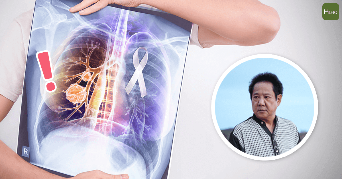 馬如龍因肺腺癌併發症病逝 這6類高風險群要當心6種症狀 | Heho健康