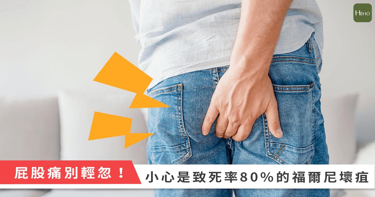 肛門突然爆痛、一摸腫一塊 可能是致死率8成的褔爾尼氏壞疽