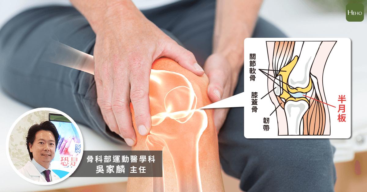 膝蓋傷可不是NBA球員才有 走路時「啪」一聲小心半月板已受傷
