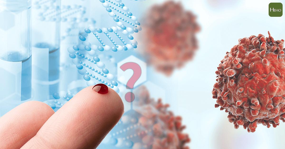 日本又傳出靠一滴血就可驗出癌症 到底是真的還是唬人的?