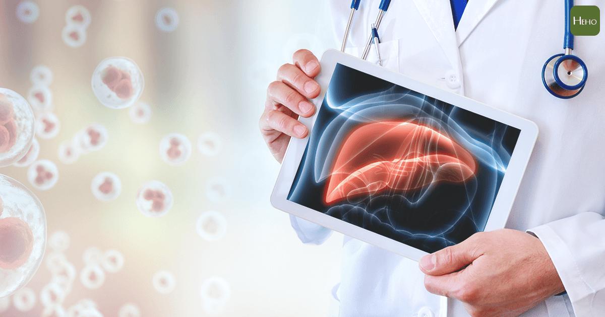 單用免疫治療僅15%有效 肝癌末期這樣治成功率最高