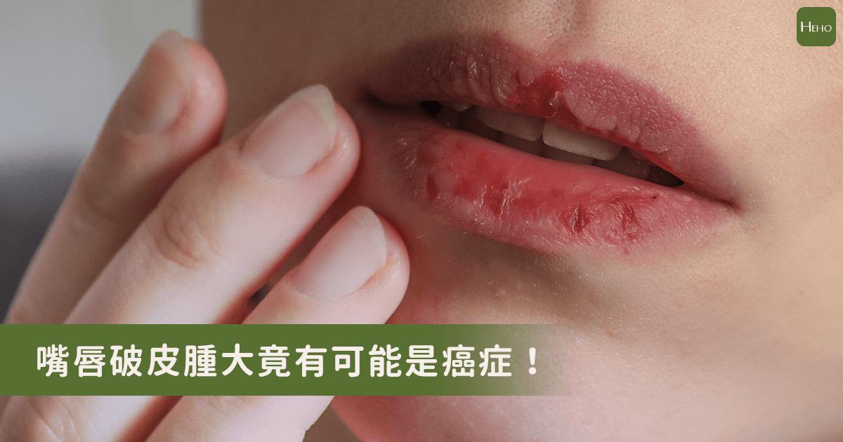 嘴唇破皮腫大不是感染是癌症!醫生:常曬傷的人要小心!