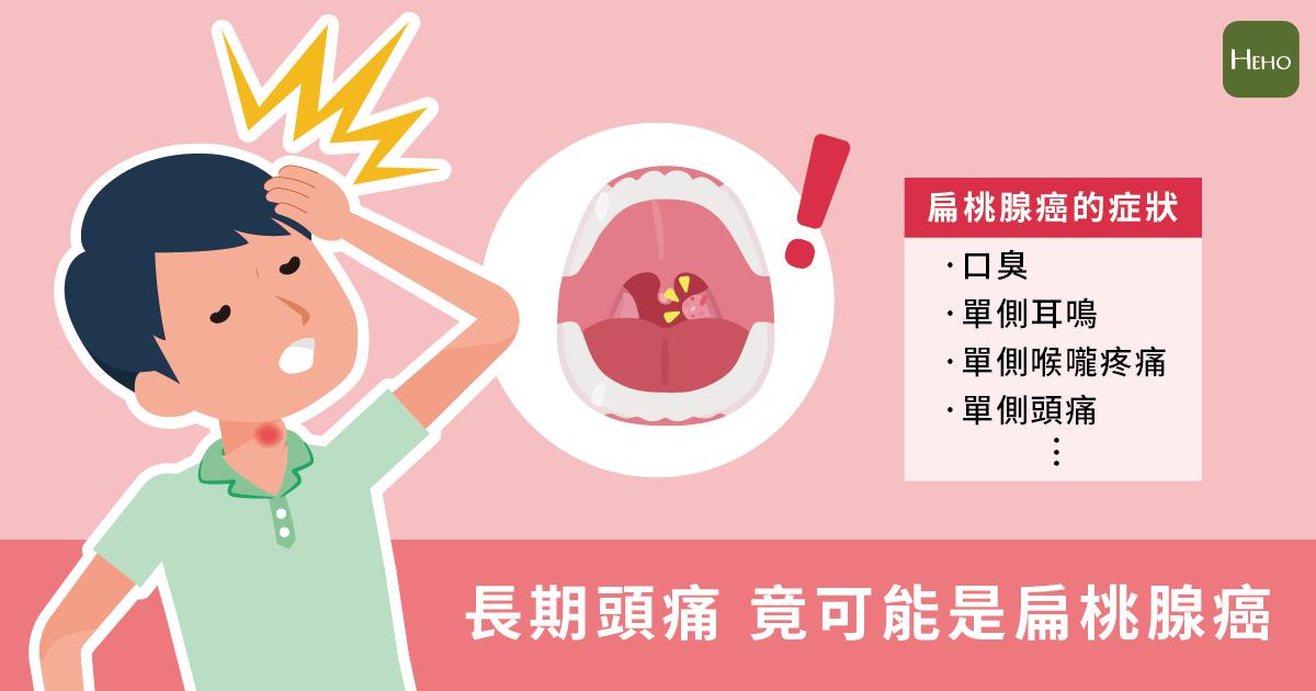 頭痛欲裂竟然是扁桃腺癌!8項症狀發作超過2週趕緊就醫