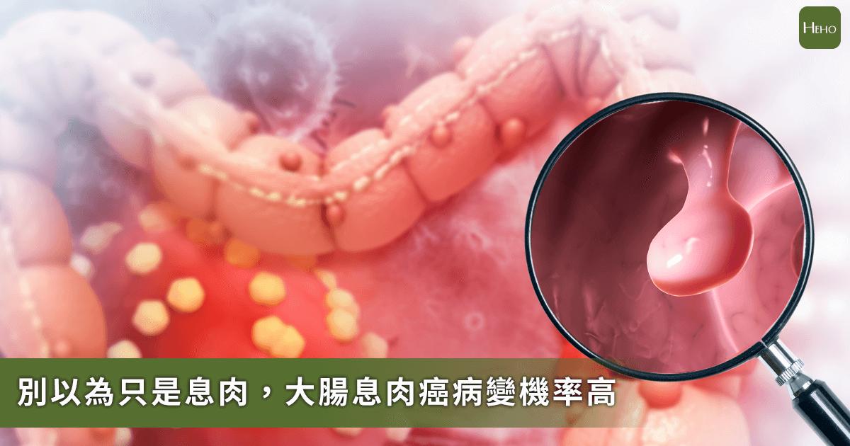 為什麼會得大腸癌?醫師:95%大腸癌是息肉變成