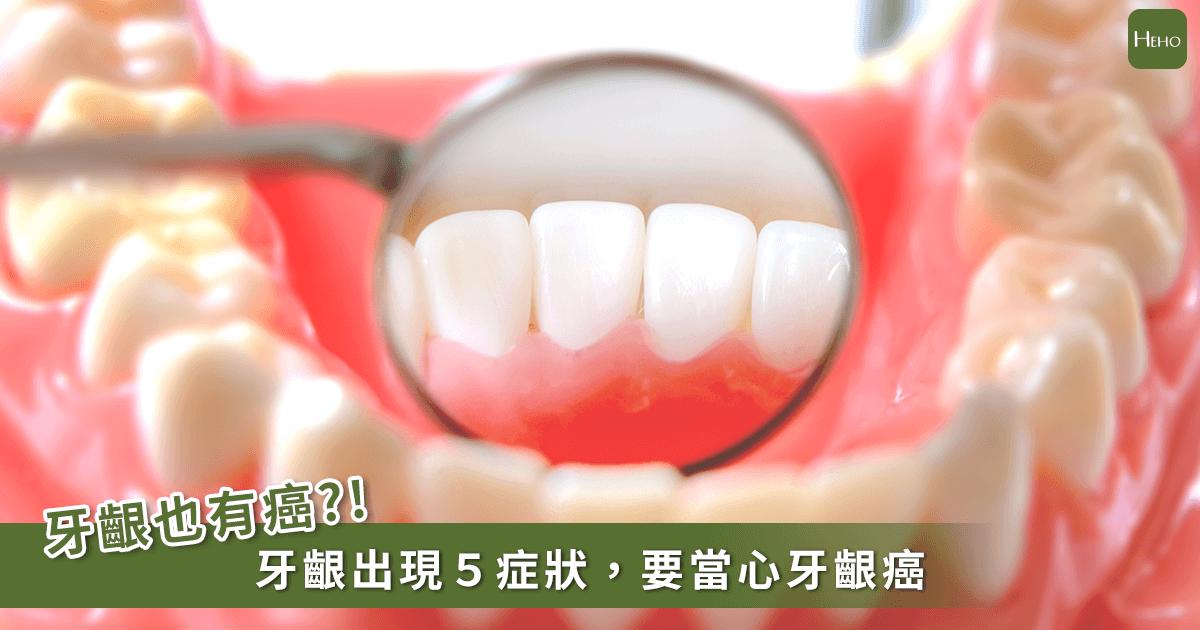20191216-牙齦