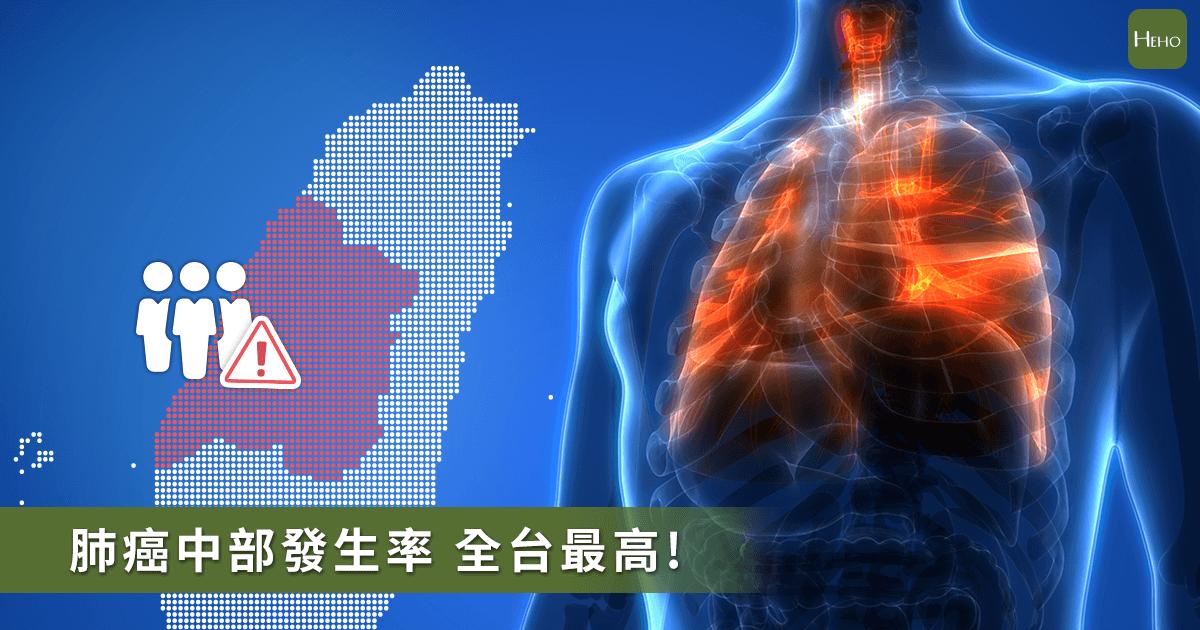 20200109-肺癌