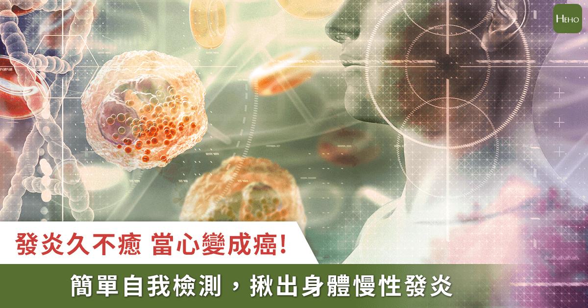 癌症是終極發炎的結果!美國權威研究:想防癌,要先抗發炎