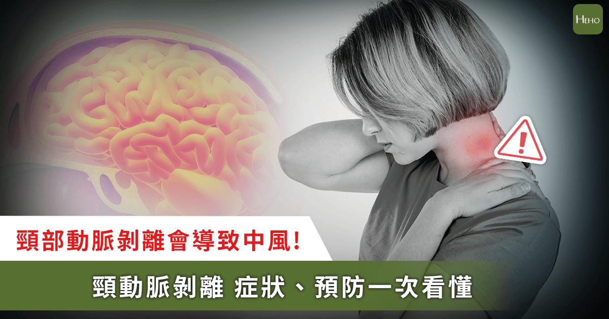 頸動脈剝離會讓人馬上中風!看懂預防、症狀10大問題
