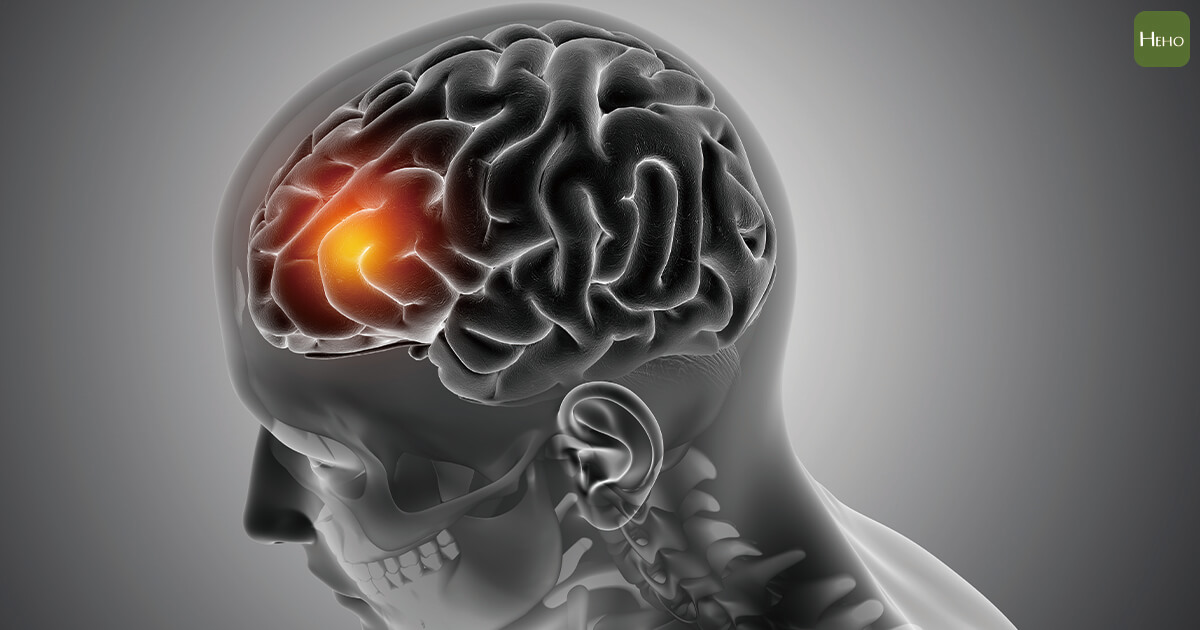 新冠病毒不只傷肺!英研究:導致患者神經傷害、中風疫情過後出現「隱性的流行病」 | Heho健康