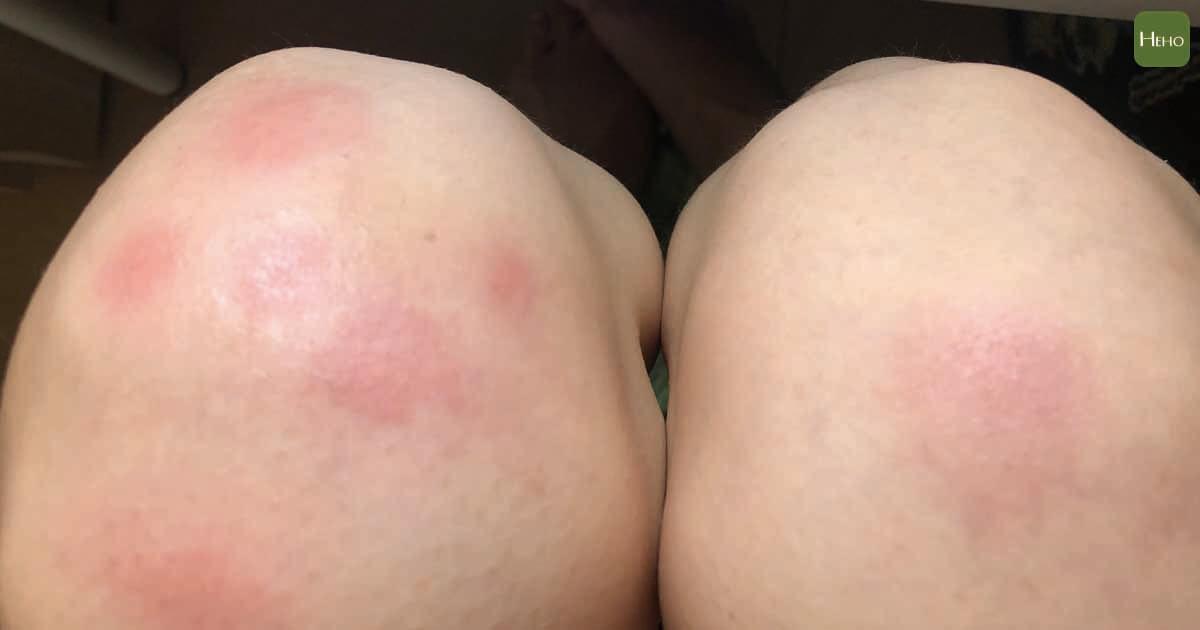 兒童防蚊液怎麼挑?可以跟防曬一起用嗎?皮膚科醫師解密:注意 2 種成分