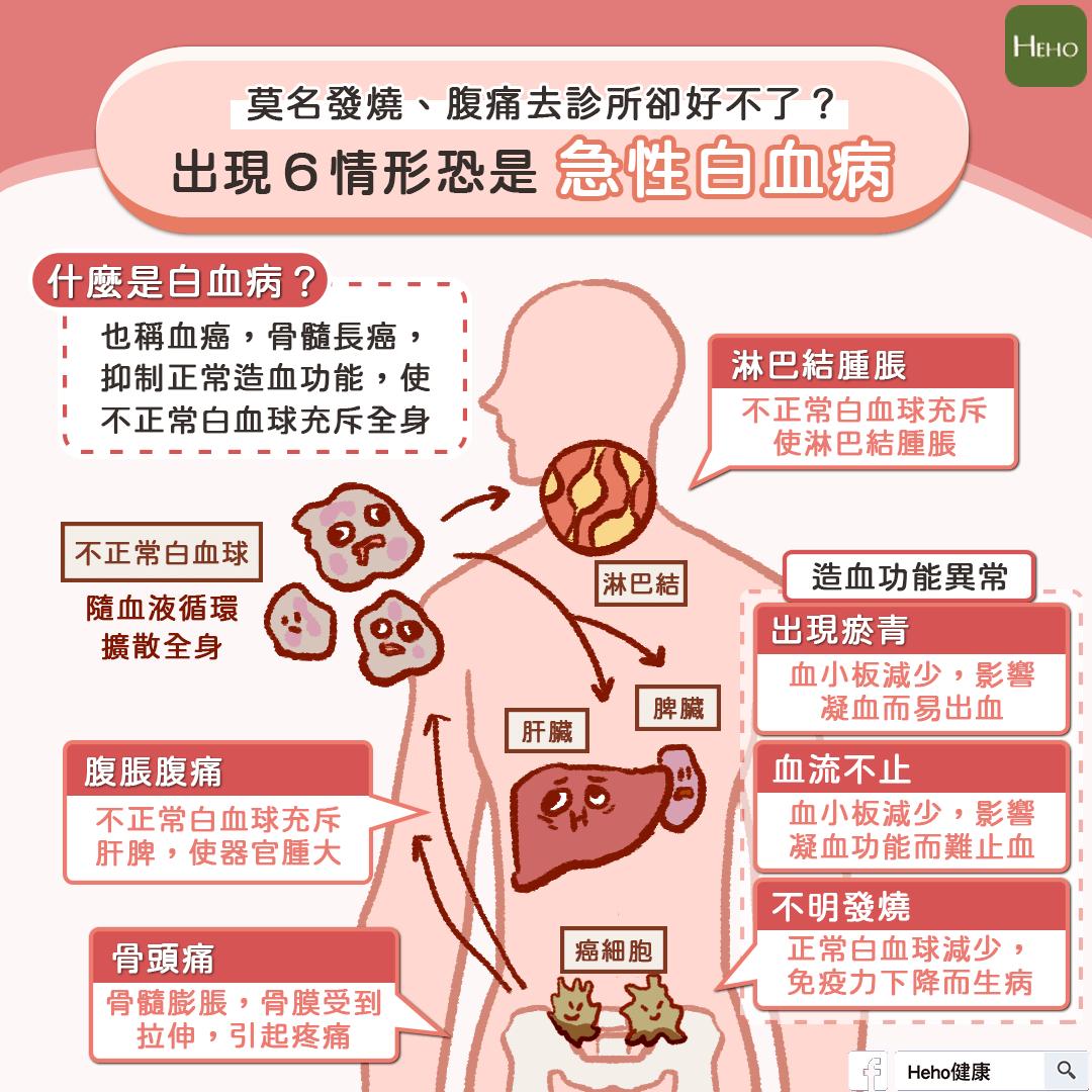 莫名發燒、腹痛以為是感冒看了醫師卻沒改善?出現這6情形恐是急性白血病!