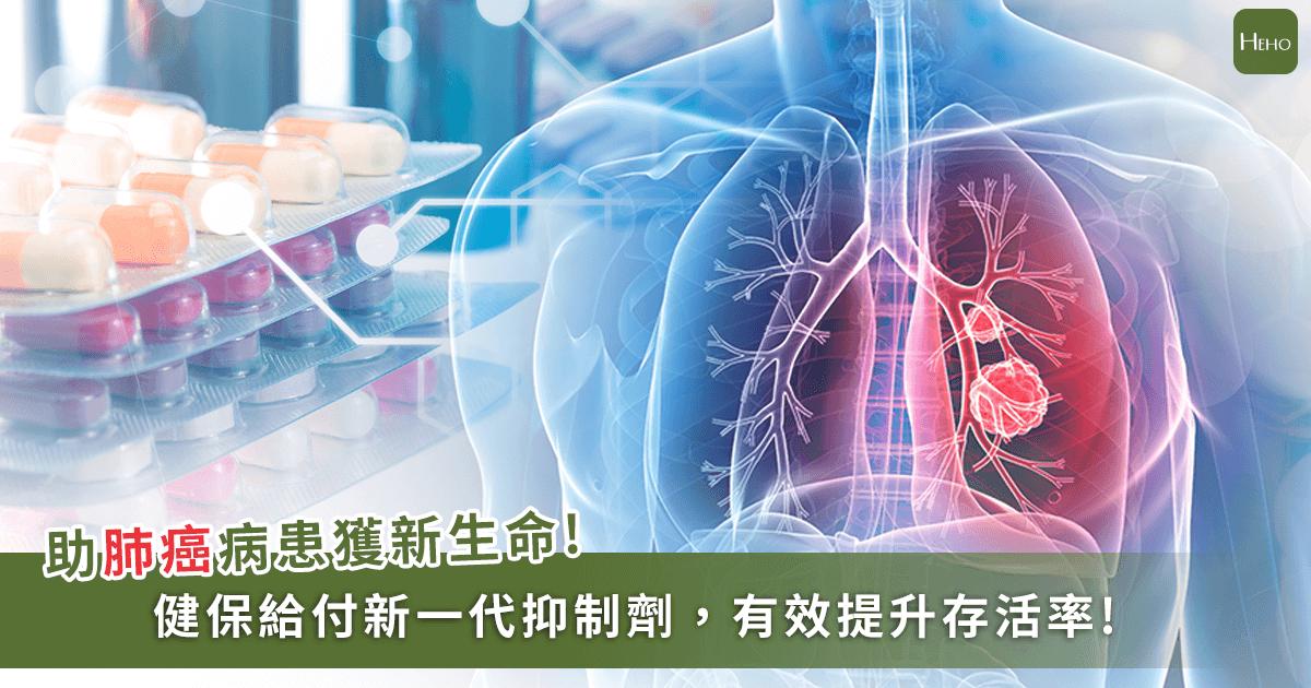 20200618-肺癌