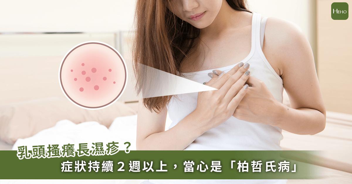 夏日悶熱乳頭起濕疹久久未癒!小心是「柏哲氏病」示警:乳癌已經上身了