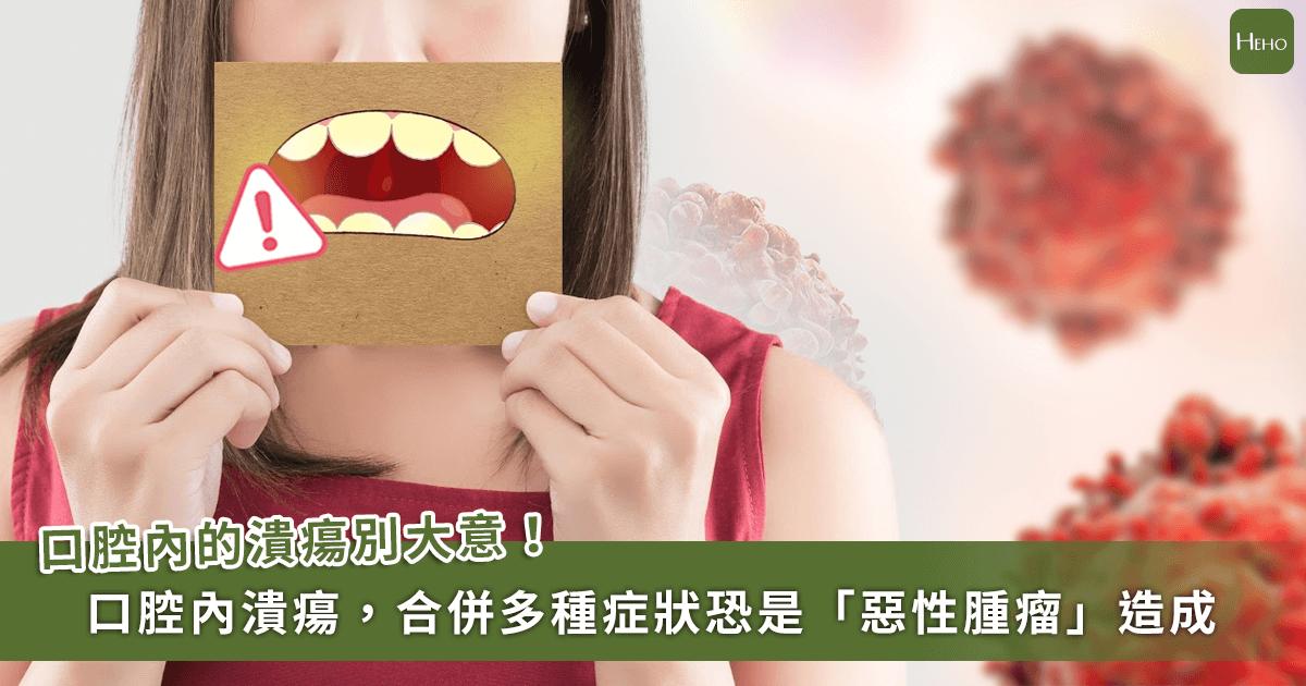 0224-口腔-癌症