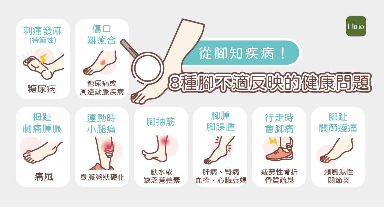【Heho微動畫】盤點8種腳部不舒服可能的身體徵兆!