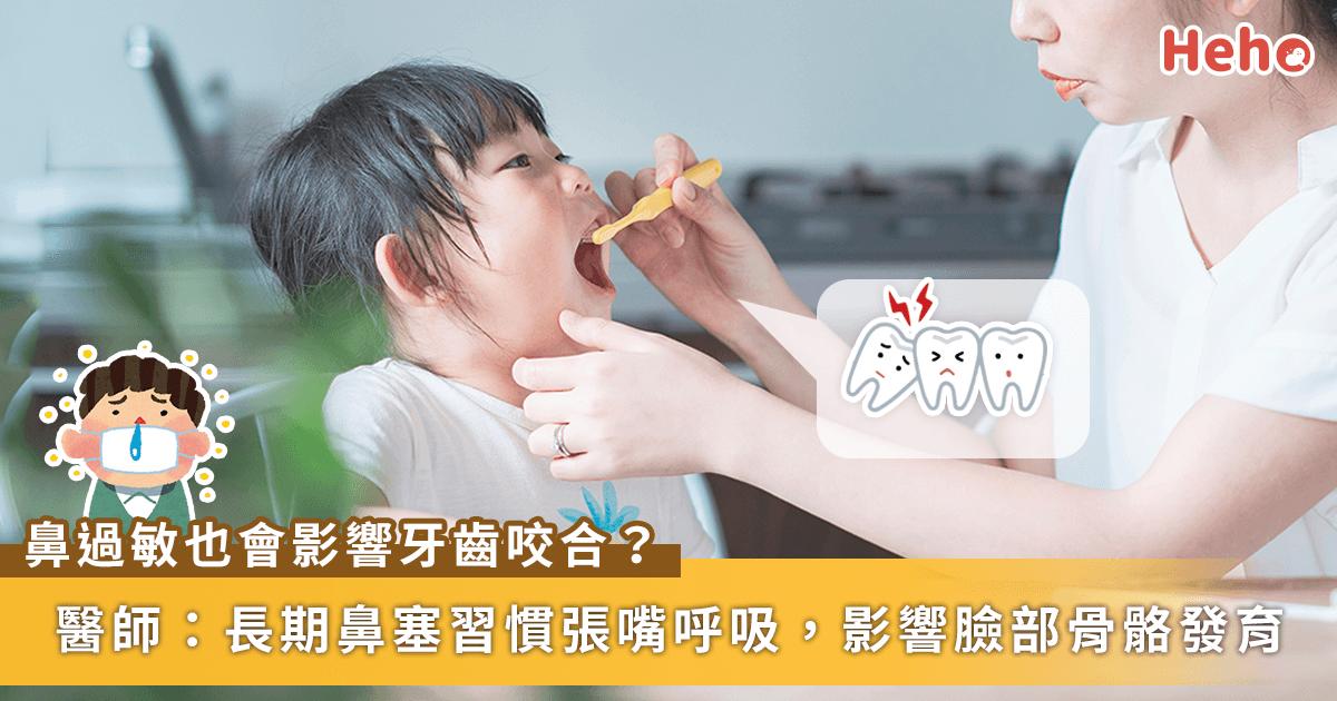 0407-過敏-牙齒