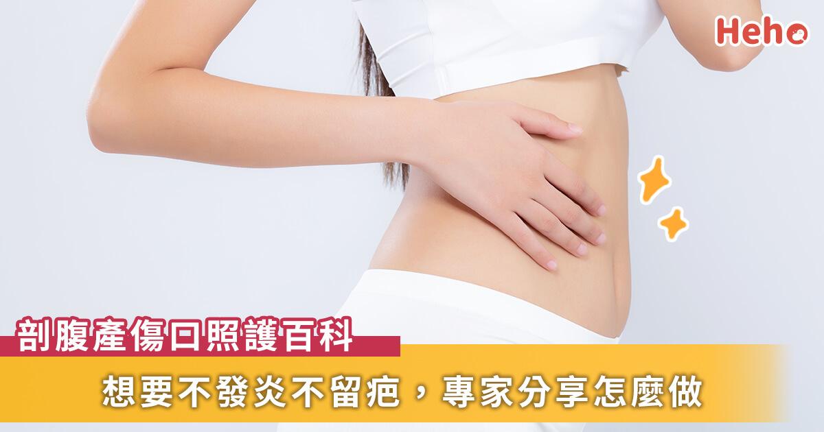 20210413_剖腹產沾黏、傷口照護面面觀,如何不發炎不留疤