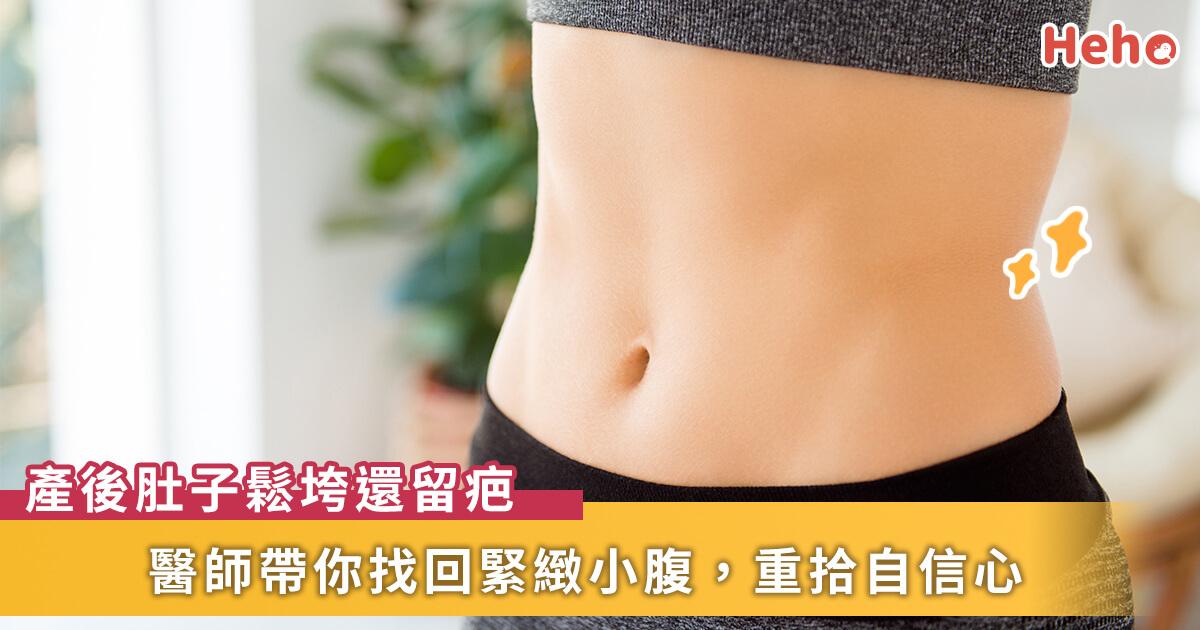 20210406_剖腹產後肚子鬆垮垮還留疤,醫師教你恢復緊緻小腹