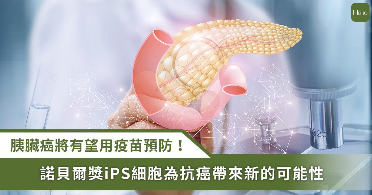20210609_癌王「胰臟癌」有望用疫苗預防!諾貝爾獎iPS細胞展現抗癌潛力